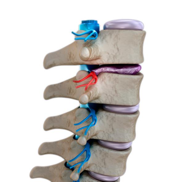 Dorn Therapie - Wirbelsäule - Physiotherapie Völklingen